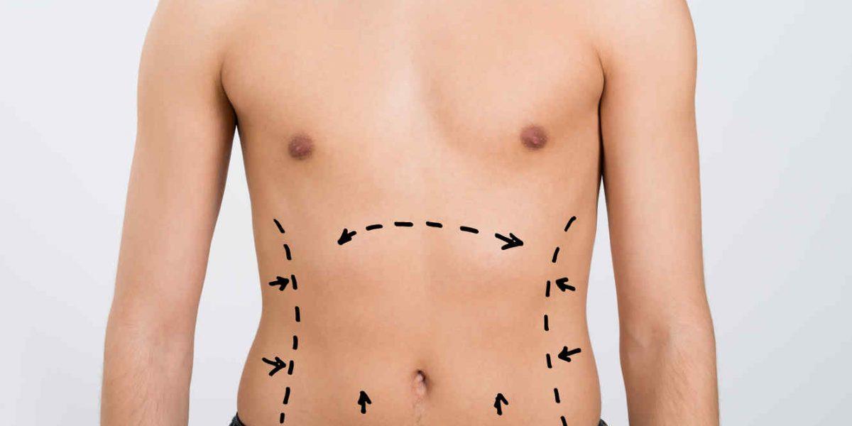 cirugia en hombres